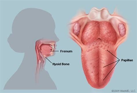 Tongue Picture Image on MedicineNet