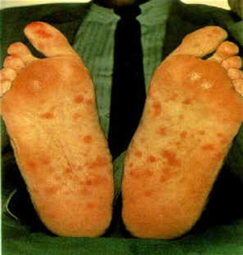 Learn About Syphilis Symptoms Pictures Treatments Photos