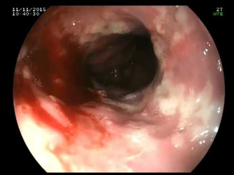 Ramsay-Hunt syndrome with vesicular stomatitis in a 4-year