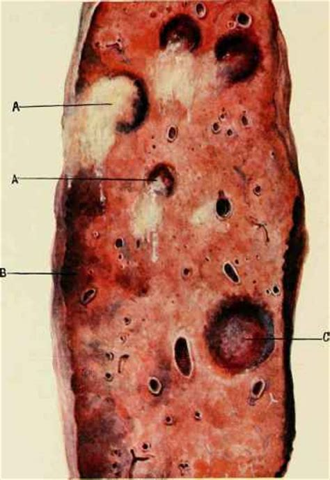 Eruptions Of The Acute Specific Diseases