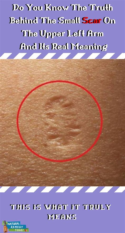 Most people have a small round scar on their upper left